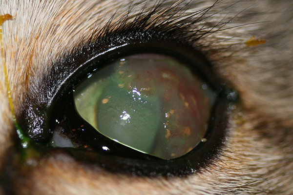 Corneal infiltrates can be secondary to corneal infection.