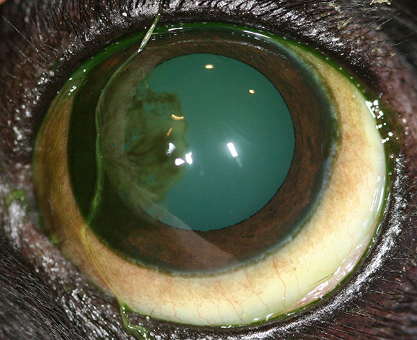 Corneal Opacification - Corneal Pigmentation